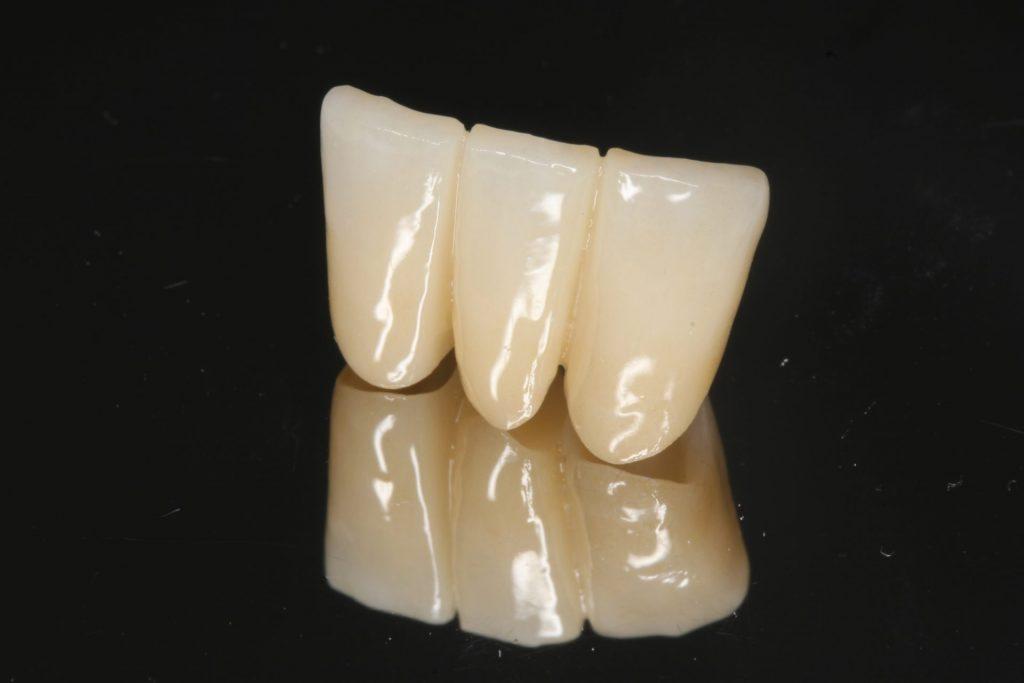 甲子園あいはら歯科医院の審美歯科について。