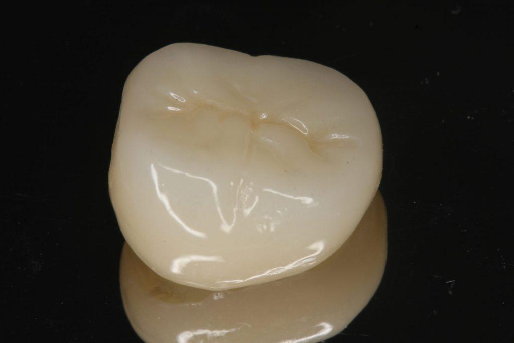 日本歯科審美学会のオンラインセミナを受講しました。